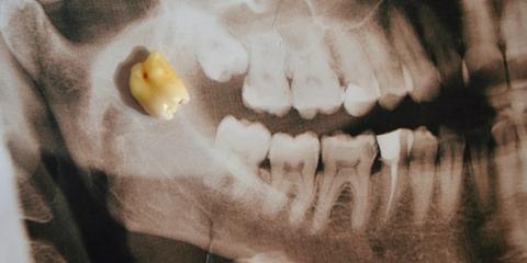 3 Facts You Should Know About Wisdom Teeth Removal, Anchorage, Alaska