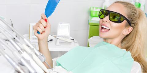 4 Benefits of Dental Veneers, Springdale, Ohio