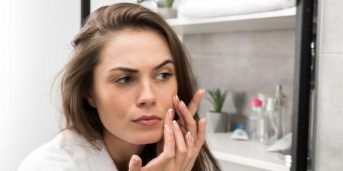 4 Skin Care Tips to Prevent Acne Scarring, Kailua, Hawaii
