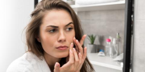 What to Know About Adult Acne , High Point, North Carolina