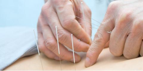 How Many Acupuncture Treatments Should I Expect to Have?, Webster, New York