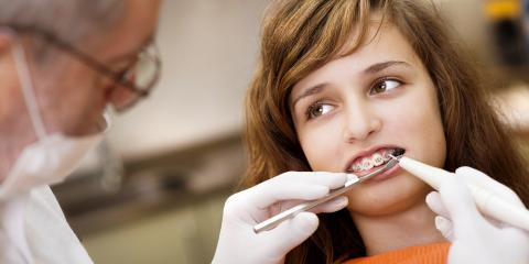 4 Frequently Asked Questions About Braces, Madison, Ohio