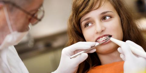 Wisconsin Orthodontist Answers Your Questions About Braces, Baldwin, Wisconsin