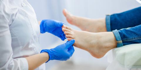 What Causes a Fungal Nail?, Norwich, Connecticut