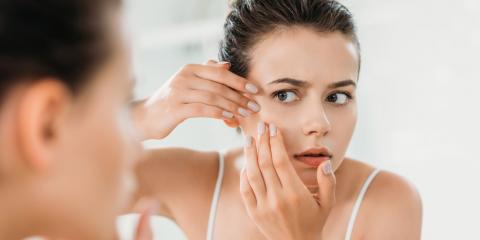 Combat Acne With These 4 Skin Care Tips, McKinney, Texas