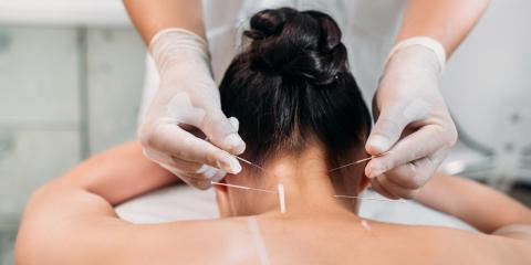Do's & Don'ts Before Undergoing Acupuncture, Anchorage, Alaska