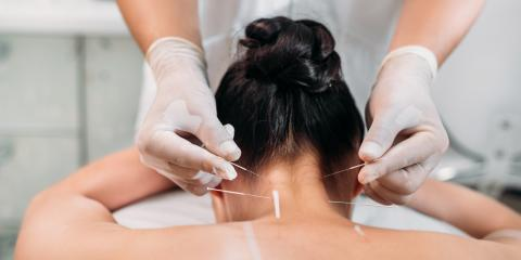4 Key FAQ About Acupuncture & Pain Relief, St. Peters, Missouri