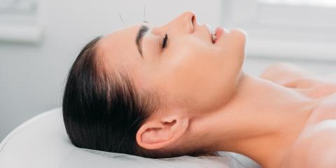 4 Cosmetic Benefits of Acupuncture, Northeast Jefferson, Colorado
