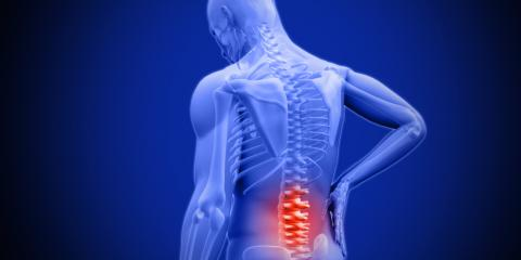 3 Reasons to Choose Spinal Decompression to Help With Back Pain, Somerset, Kentucky