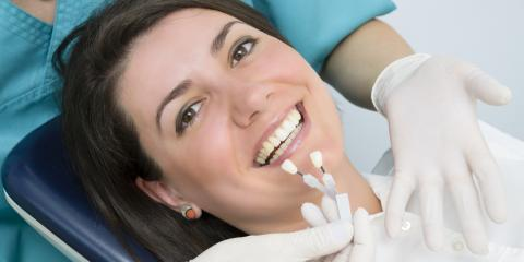 Dentists Explain the Difference Between Teeth Whitening & Bleaching, Richmond, Kentucky