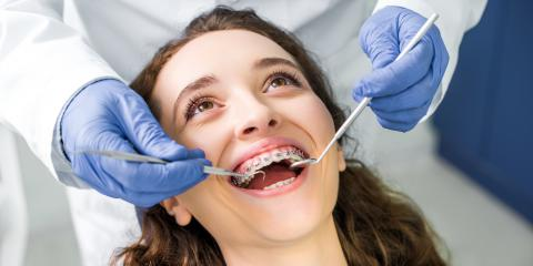 How to Help Children Get Accustomed to Braces, Circleville, Ohio