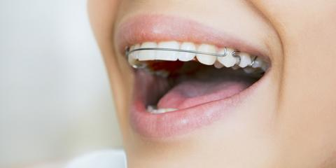 Why Is Wearing a Retainer Important After Braces? - Kristo