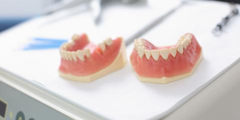 Which Types of Dentures Are Right for You? A Dentist Weighs In, Kalispell, Montana