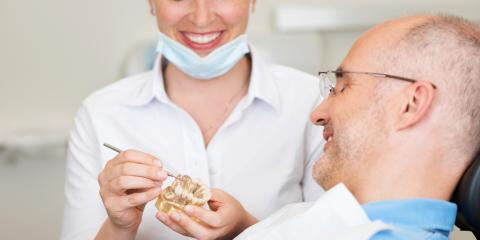 4 FAQs About Dental Crowns From an Ashtabula Dentist, Ashtabula, Ohio