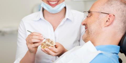 Which Type of Tooth Implant Is Best for You?, Kodiak, Alaska