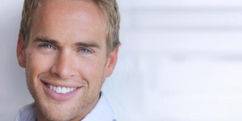 What Are Dental Veneers? - Fallbrook Family Dentistry