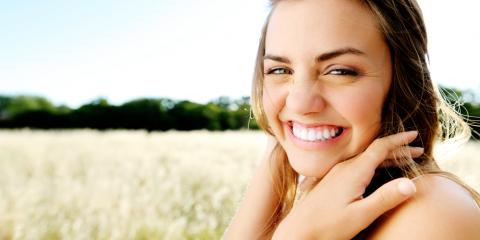What Are Lumineers? A Dentist Explains, Superior, Nebraska