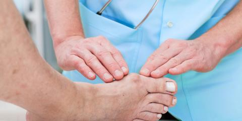 3 Effective Treatments for Eliminating Bunions, Elko, Nevada