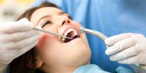 A Dentist Office Shares the Benefits & Uses of Dental Sealant, Springfield, Ohio