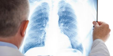 What Is Asbestosis & How Can You Prevent It? - Concord