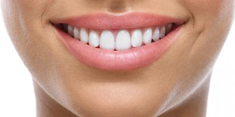3 Easy Ways to Avoid a Chipped Tooth, Somerset, Kentucky