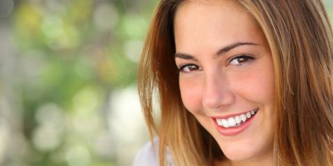 4 Benefits of Professional Teeth Whitening, Kalispell, Montana