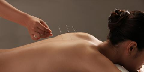 4 Ways Acupuncture Improves Your Health, Webster, New York