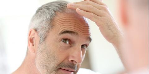 What Is Laser Hair Restoration & How Does It Work? , Lexington-Fayette Northeast, Kentucky