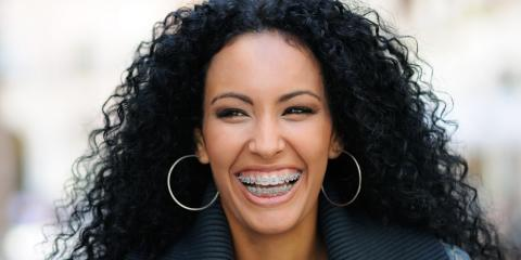 What You Need to Know About Invisalign® & Traditional Braces, North Richland Hills, Texas