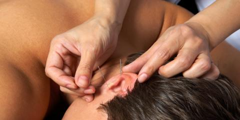 The History of Korean Acupuncture, North Hempstead, New York