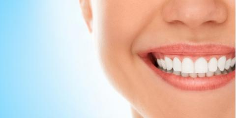 Should I Replace My Silver Fillings With Composites?, High Point, North Carolina