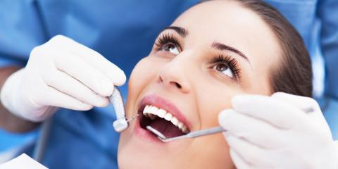 3 Benefits of Opting for Root Canal Treatment Instead of Extraction, Anchorage, Alaska