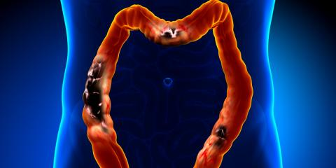 Colon Cancer Screening, 1, Virginia
