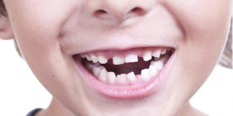 What You Need to Know About General Dentistry for Children, Foley, Alabama