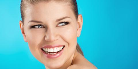 5 Signs You Are A Candidate for Dental Veneers, Hinesville, Georgia