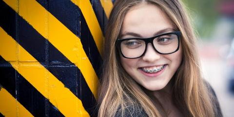 4 Tips to Avoid White Spots From Braces , Avon, Ohio