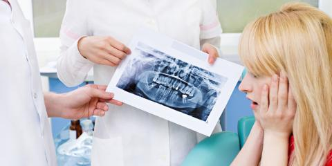 Why You Shouldn't Be Scared of a Root Canal, Webster, New York