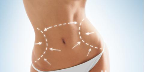 What Is Smartlipo & How Can It Help You?, Lincoln, Nebraska