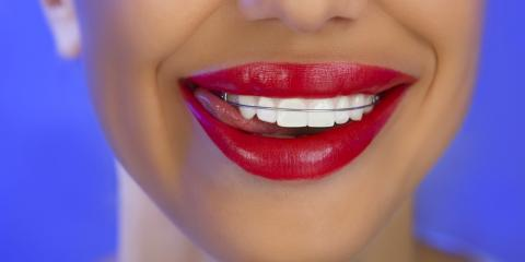 Why Retainers Are an Important Part of Orthodontic Care, Scarsdale, New York