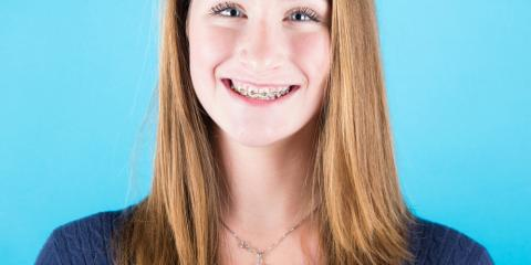 Should I Visit My Dentist If I Have Braces? Preventive Dentistry Team Shares, Columbia Falls, Montana