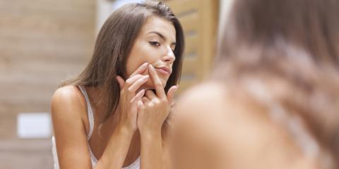 5 Cosmetic Ingredients for Acne-Prone People to Avoid, High Point, North Carolina