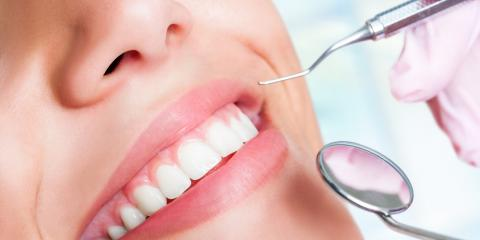 To Ensure You Get the Best Cosmetic Dentistry Care, Follow These 3 Tips, Somerset, Kentucky