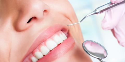 What to Expect During a Teeth Cleaning, Jacksonville, Arkansas