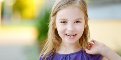 Children Dentist Describes 3 Steps to Take When Your Child Loses a Tooth, Ewa, Hawaii