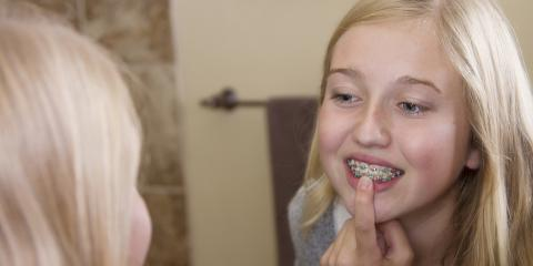 How to Keep Your Smile Straight After Braces, Brunswick, Ohio