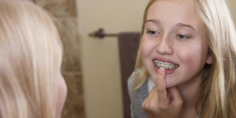 3 Cavity Prevention Tips for People With Braces, Anchorage, Alaska