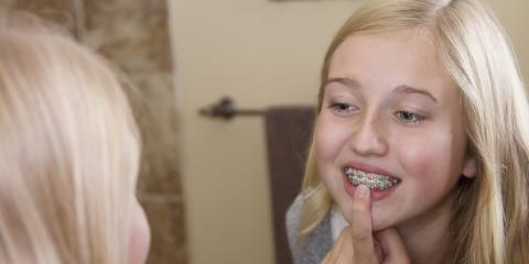 What to Do When Your Braces Cause Pain, Wausau, Wisconsin