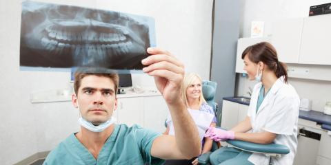 FAQ About Dental Fillings, Dunkirk, New York
