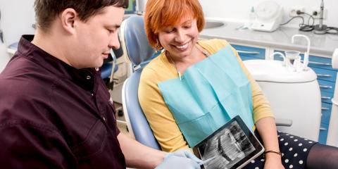 What Are Digital X-Rays?, Upper Arlington, Ohio