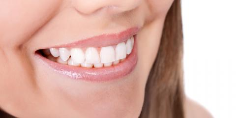 What Are Fastbraces®? Are They Right for You?, Fishersville, Virginia